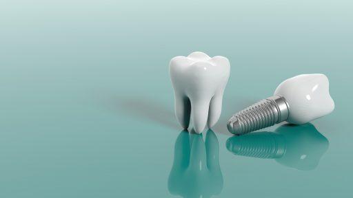 Implanty zębowe – dlaczego robi się je z tytanu?