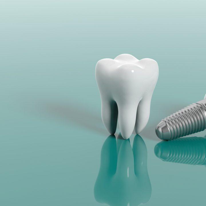 Implanty zębowe – dlaczego robi się je ztytanu?