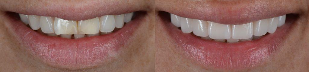Licówki zębowe przedipo